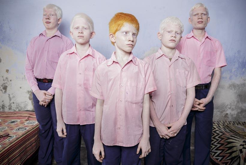 1er premio fotografía individual, Retrato, © Brent Stirton, Sudáfrica, Reportage by Getty Images